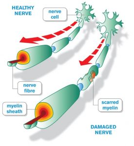 Diagram of myelin